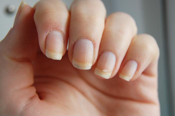naglar delar sig